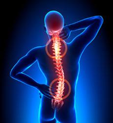 Rückenschmerzen Matratze